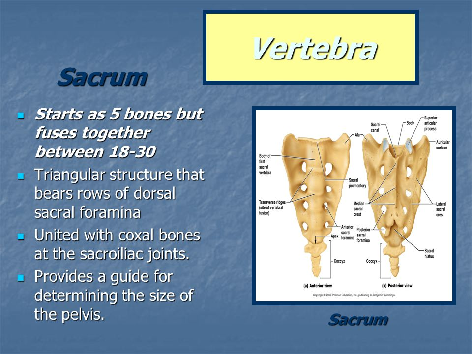 Vertebra Sacrum Starts as 5 bones but fuses together between 18-30