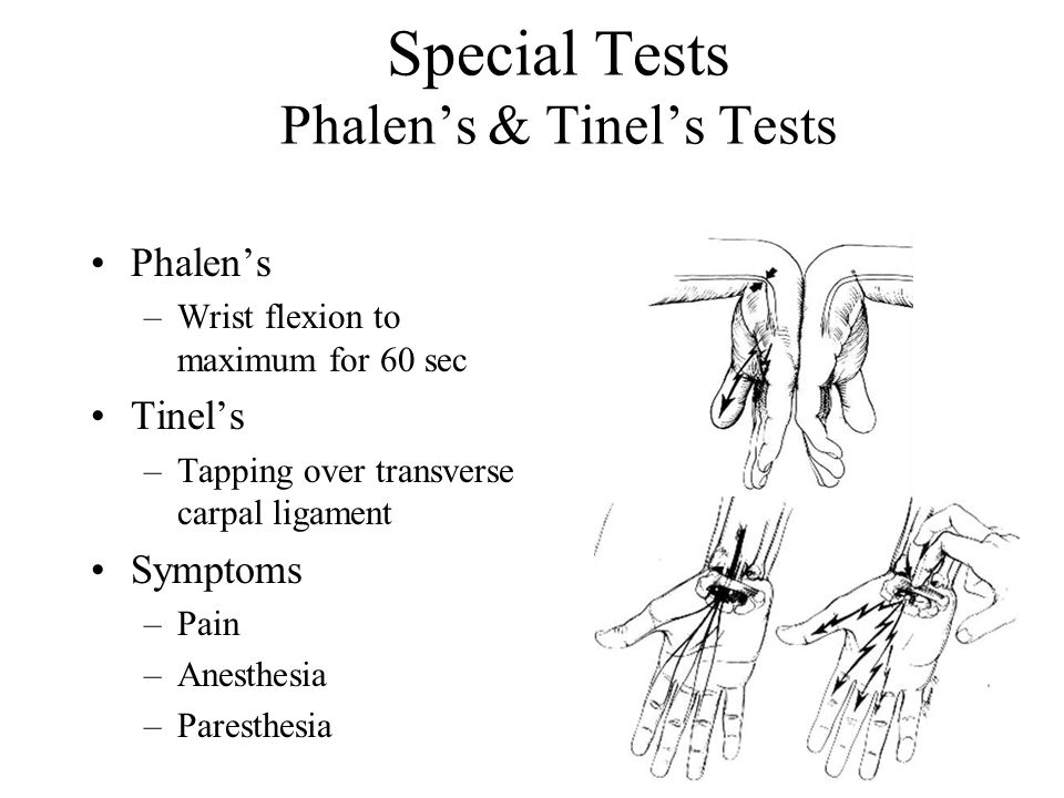 Special Tests Phalen's & Tinel's Tests