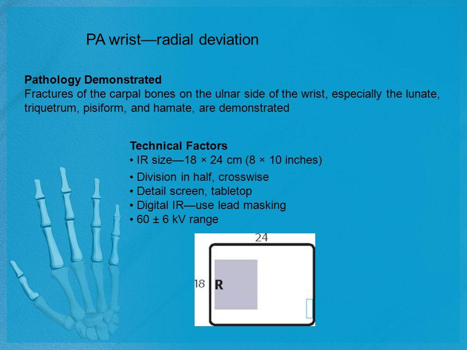 PA wrist—radial deviation