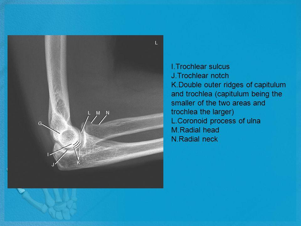 I.Trochlear sulcus J.Trochlear notch.