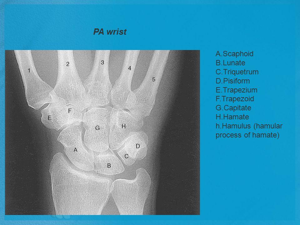 PA wrist A.Scaphoid B.Lunate C.Triquetrum D.Pisiform E.Trapezium