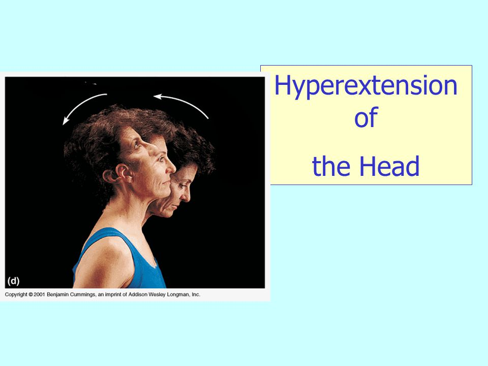 Hyperextension of the Head