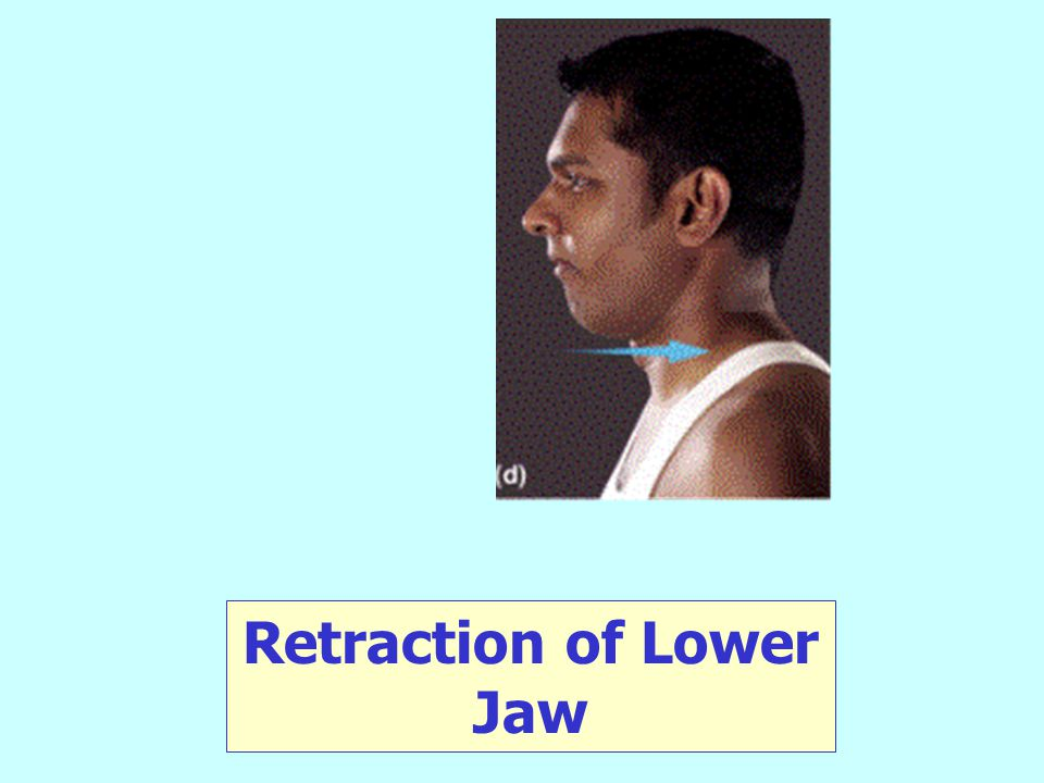 Retraction of Lower Jaw