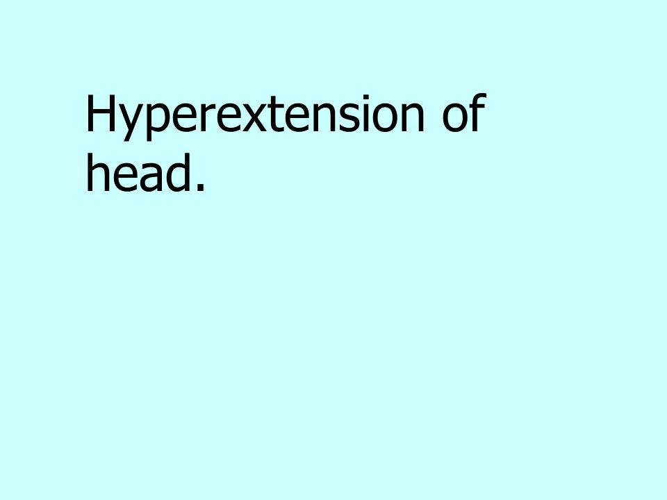 Hyperextension of head.