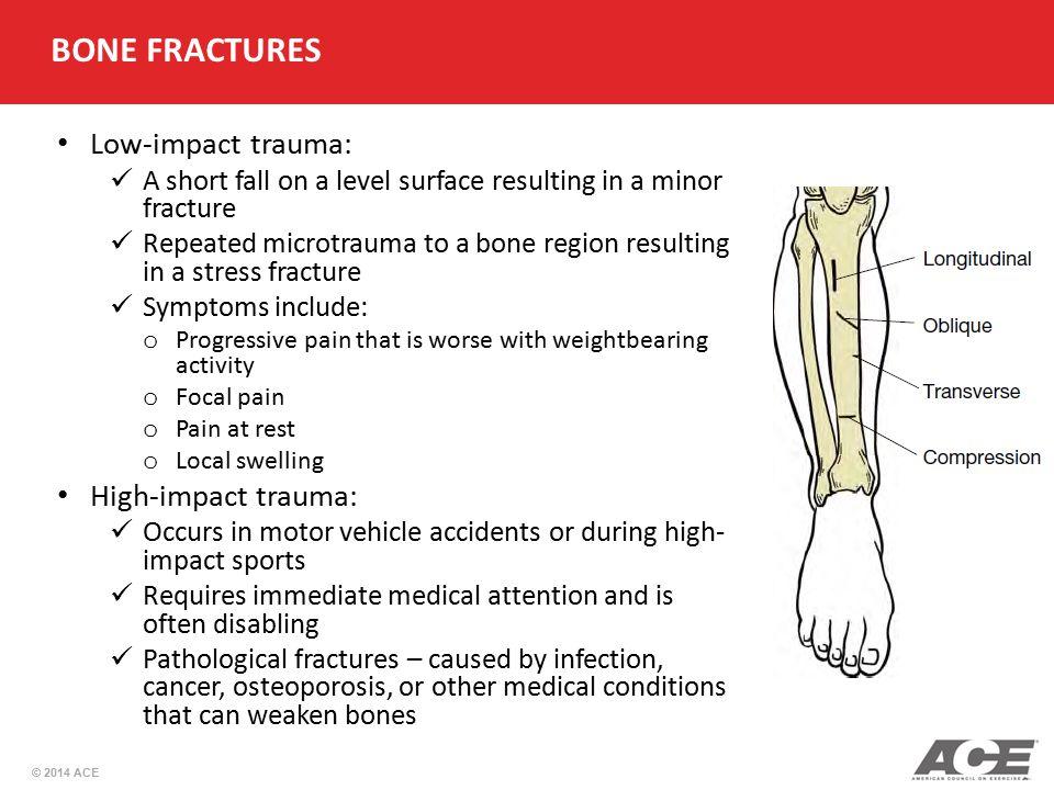 BONE FRACTURES Low-impact trauma: High-impact trauma: