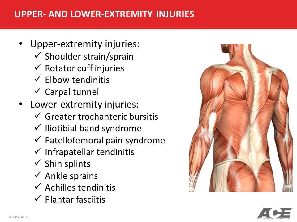 UPPER- AND LOWER-EXTREMITY INJURIES