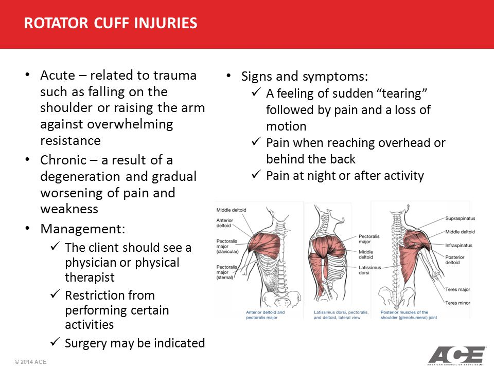 ROTATOR CUFF INJURIES Acute – related to trauma such as falling on the shoulder or raising the arm against overwhelming resistance.