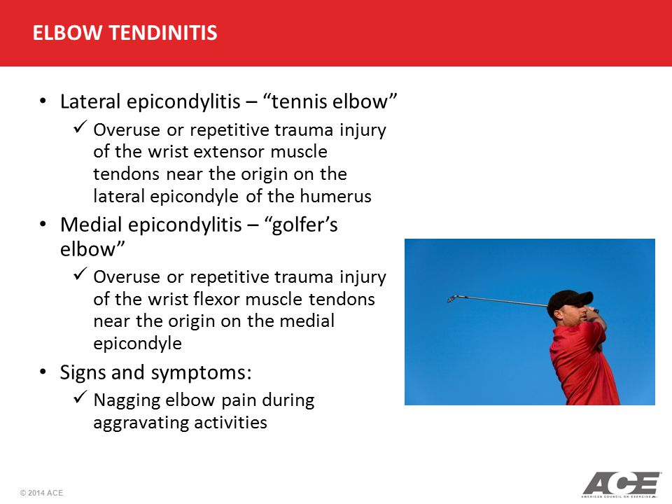 ELBOW TENDINITIS Lateral epicondylitis – tennis elbow