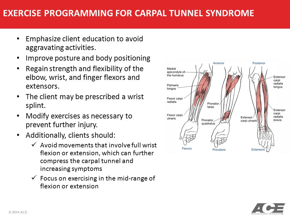 EXERCISE PROGRAMMING FOR CARPAL TUNNEL SYNDROME