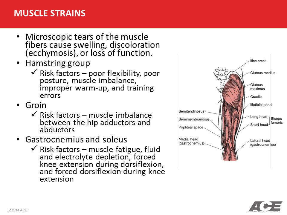 MUSCLE STRAINS Microscopic tears of the muscle fibers cause swelling, discoloration (ecchymosis), or loss of function.