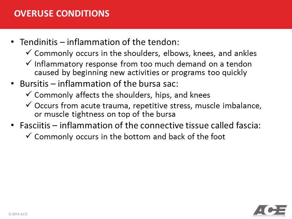OVERUSE CONDITIONS Tendinitis – inflammation of the tendon: