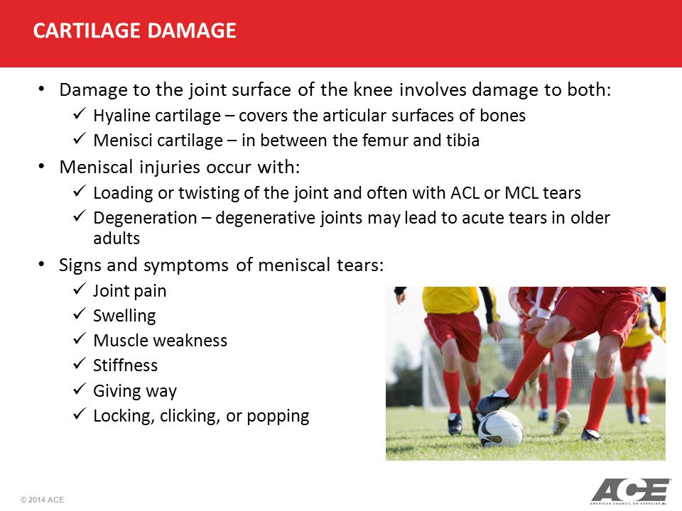 CARTILAGE DAMAGE Damage to the joint surface of the knee involves damage to both: Hyaline cartilage – covers the articular surfaces of bones.