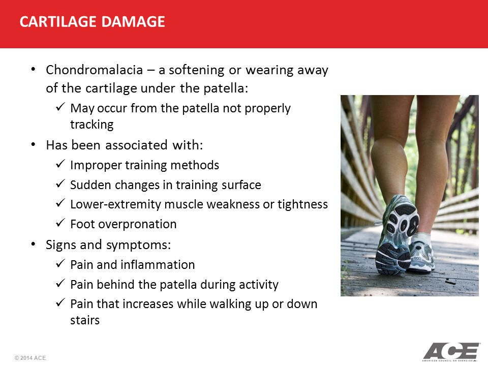 CARTILAGE DAMAGE Chondromalacia – a softening or wearing away of the cartilage under the patella: May occur from the patella not properly tracking.