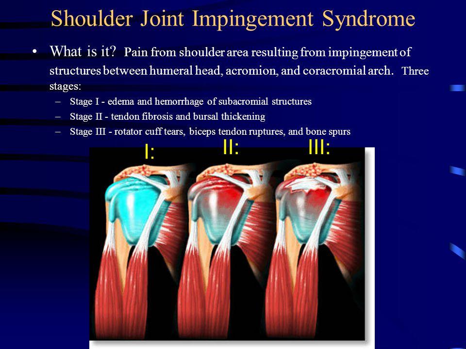 Shoulder Joint Impingement Syndrome