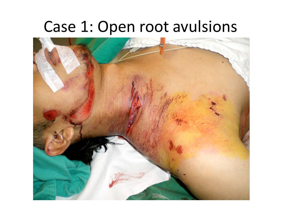 Case 1: Open root avulsions