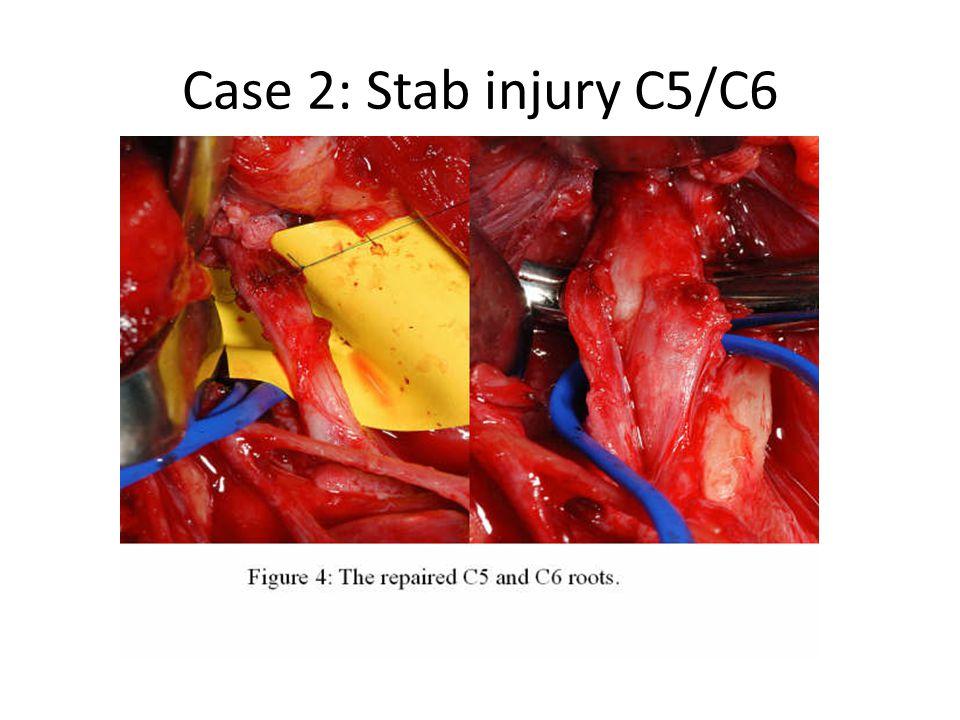 Case 2: Stab injury C5/C6