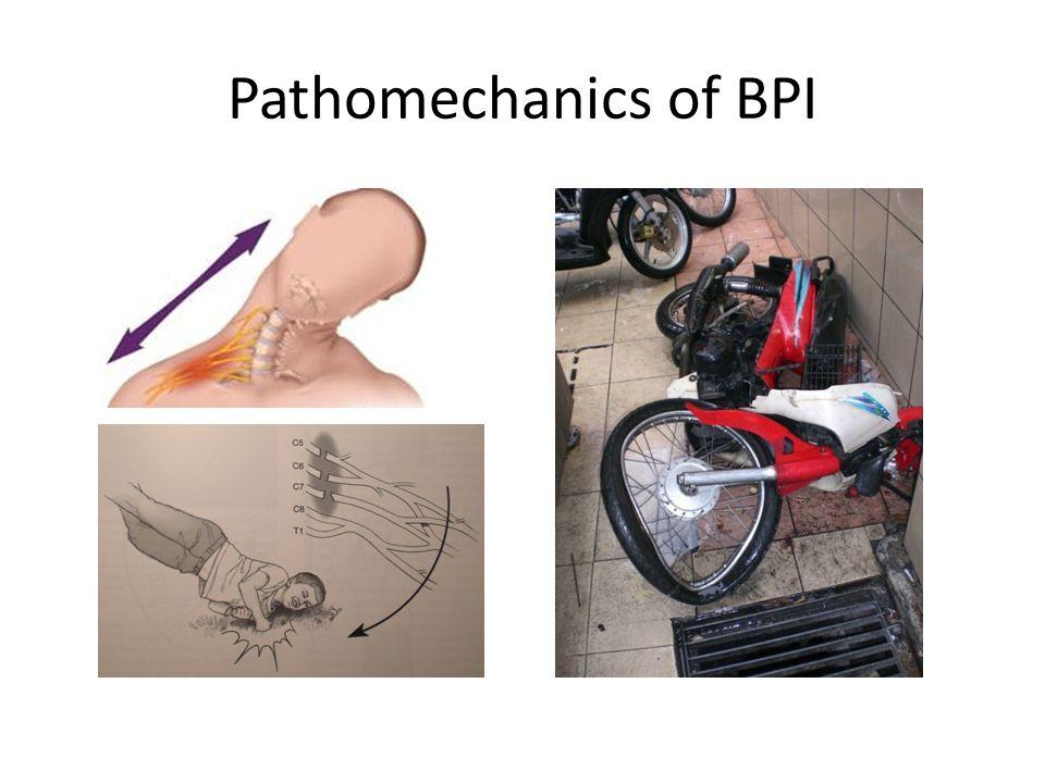 Pathomechanics of BPI