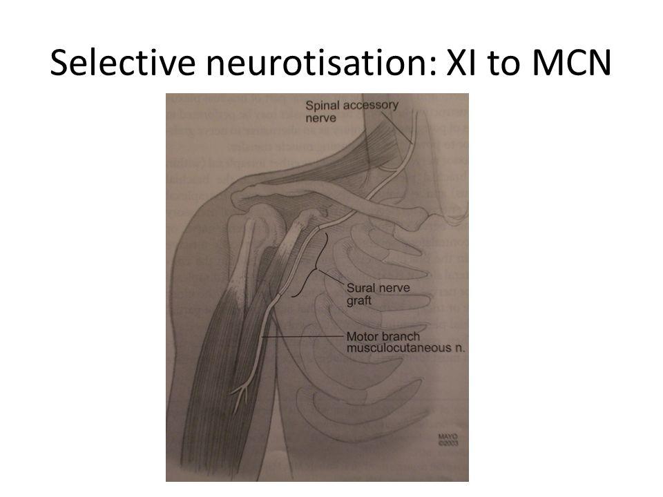 Selective neurotisation: XI to MCN