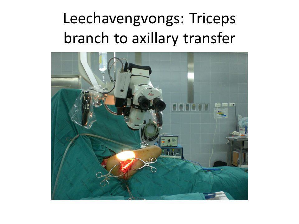 Leechavengvongs: Triceps branch to axillary transfer