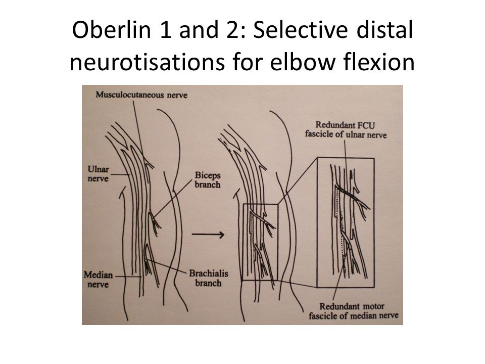 Oberlin 1 and 2: Selective distal neurotisations for elbow flexion