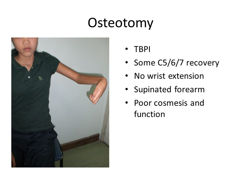 Osteotomy TBPI Some C5/6/7 recovery No wrist extension