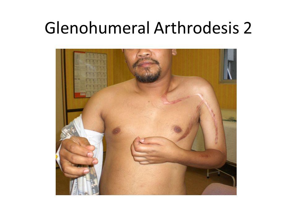 Glenohumeral Arthrodesis 2