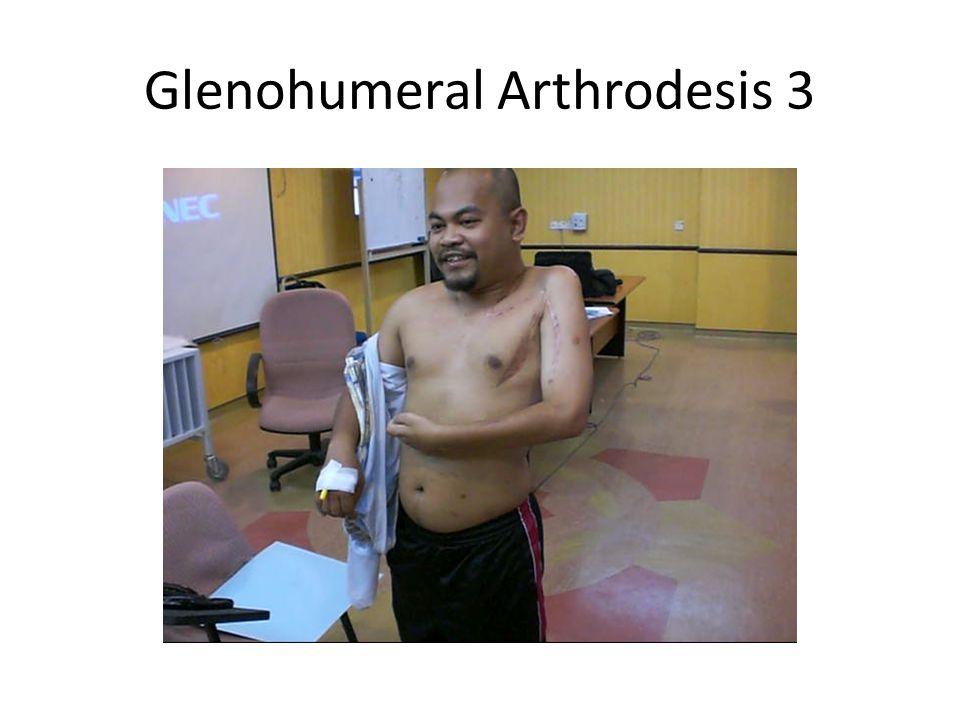 Glenohumeral Arthrodesis 3