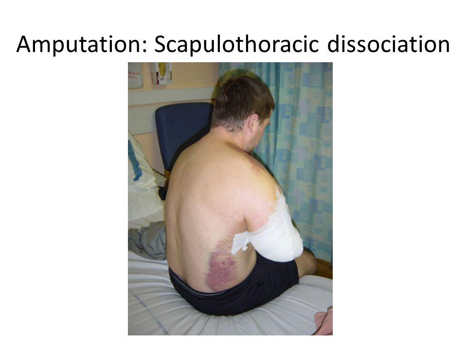 Amputation: Scapulothoracic dissociation