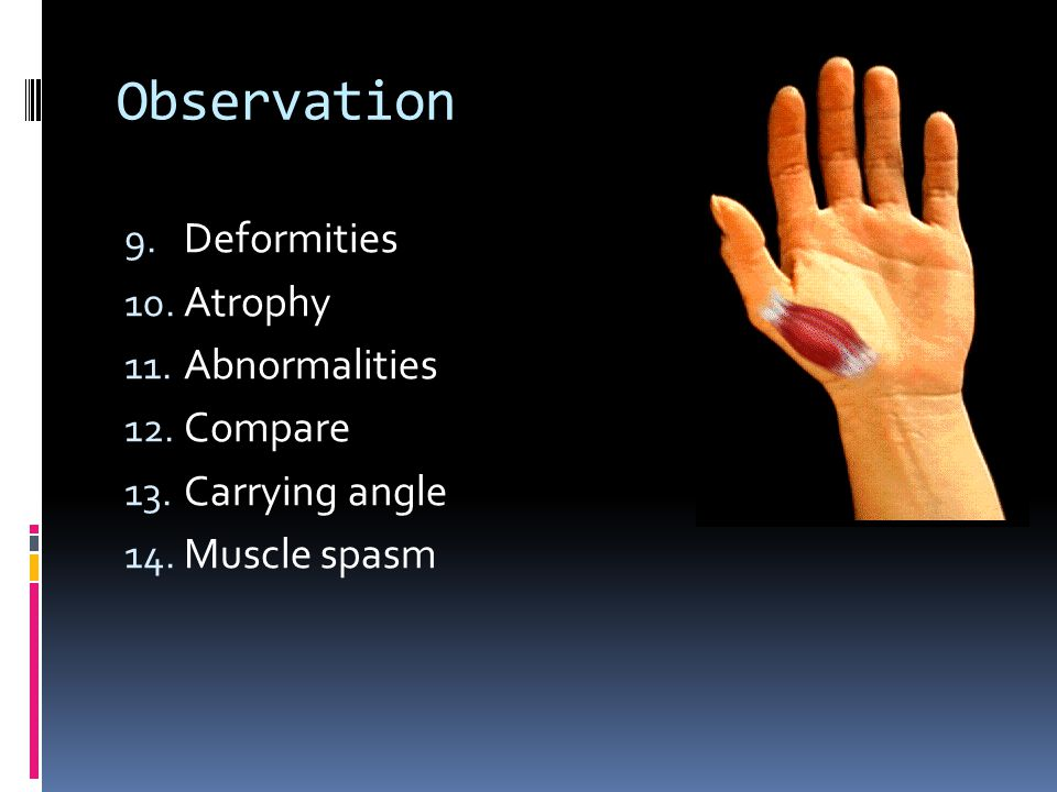 Observation Deformities Atrophy Abnormalities Compare Carrying angle