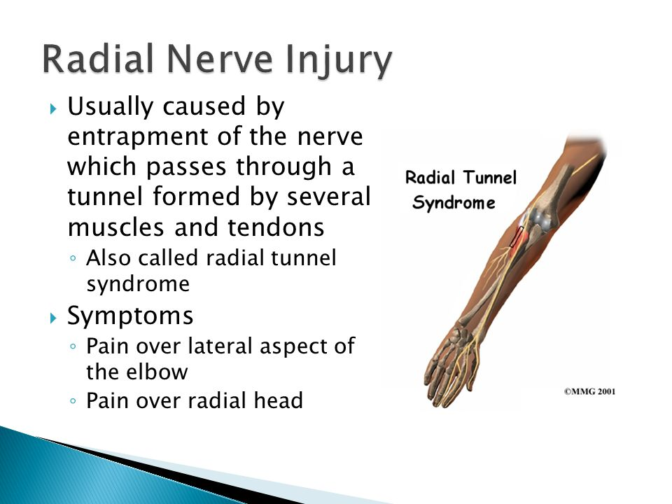 Radial Nerve Injury Usually caused by entrapment of the nerve which passes through a tunnel formed by several muscles and tendons.