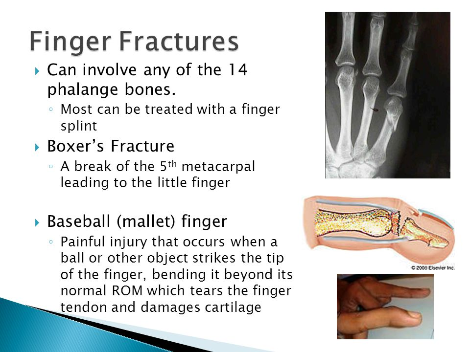 Finger Fractures Can involve any of the 14 phalange bones.