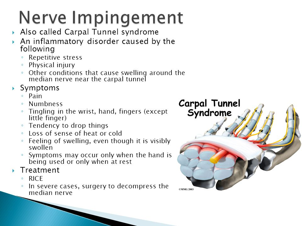 Nerve Impingement Also called Carpal Tunnel syndrome