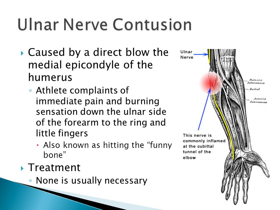 Ulnar Nerve Contusion Caused by a direct blow the medial epicondyle of the humerus.