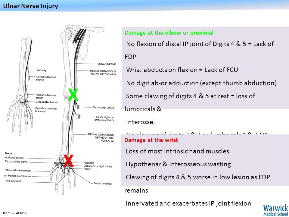 Ulnar Nerve Injury Damage at the elbow or proximal. No flexion of distal IP joint of Digits 4 & 5 = Lack of FDP.