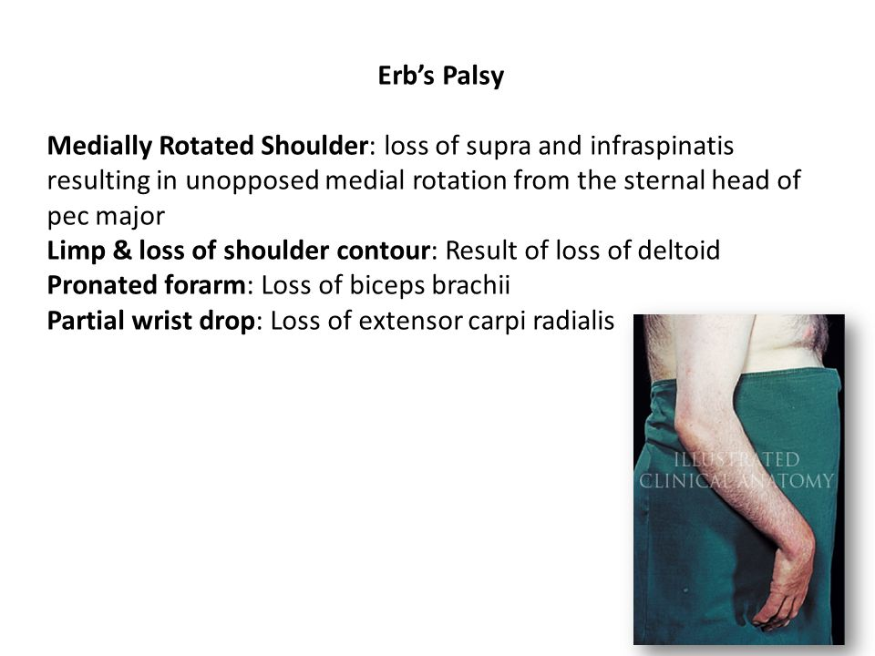 Erb's Palsy Medially Rotated Shoulder: loss of supra and infraspinatis resulting in unopposed medial rotation from the sternal head of pec major.