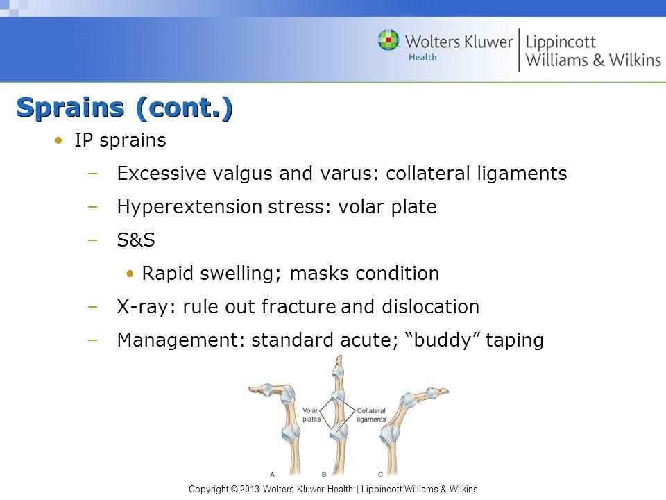 Sprains (cont.) IP sprains