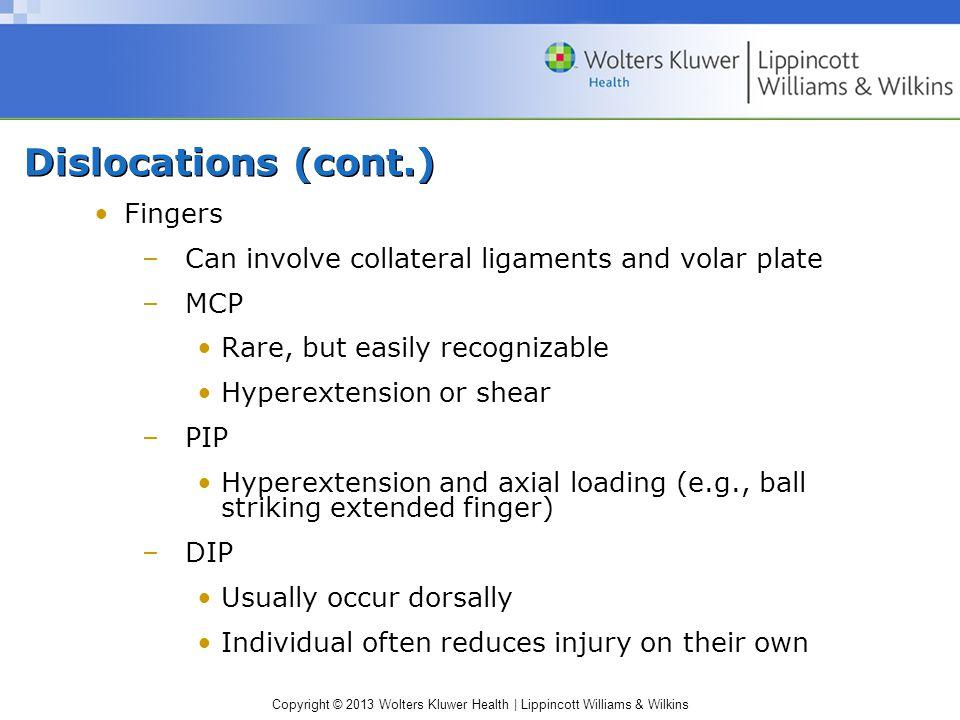 Dislocations (cont.) Fingers