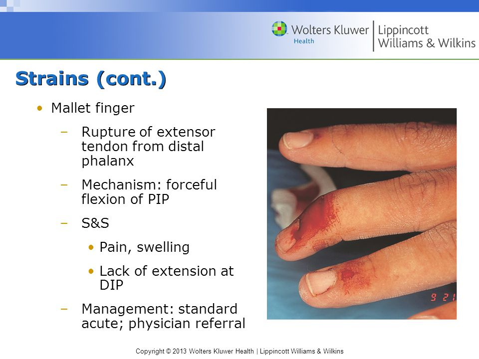Strains (cont.) Mallet finger