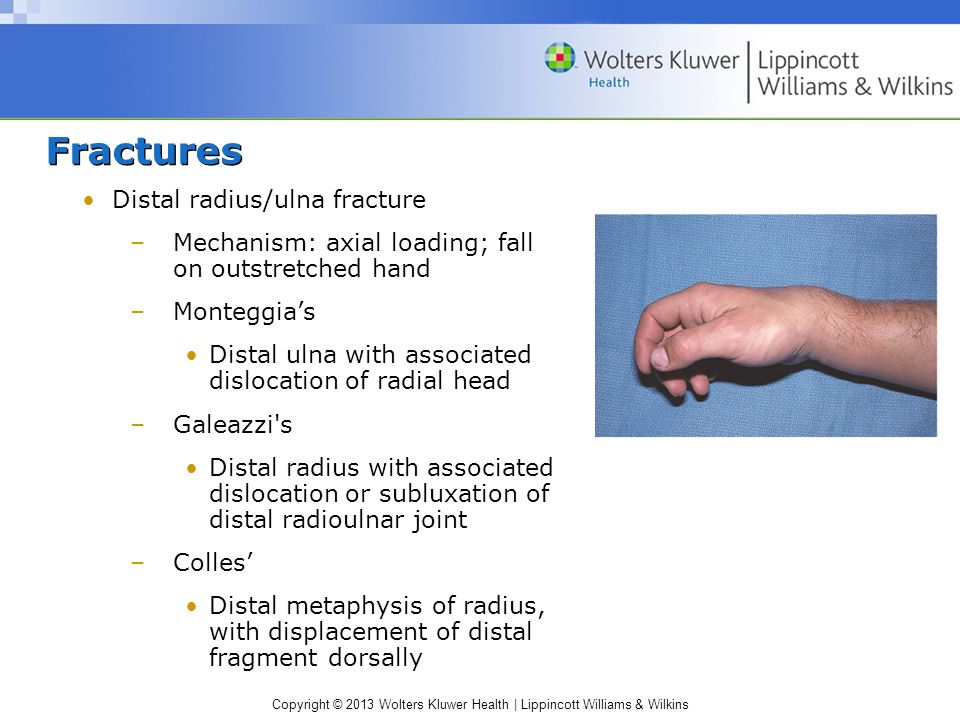 Fractures Distal radius/ulna fracture