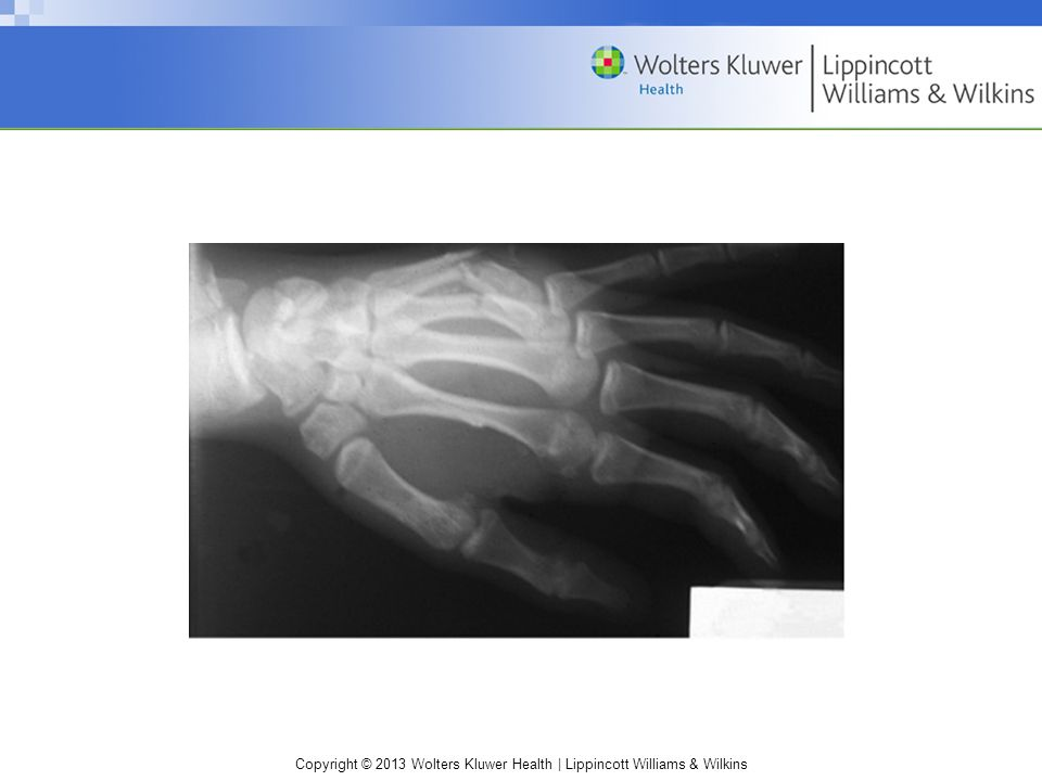 Boxer's fracture. These fractures usually involve the fourth and fifth metacarpals.