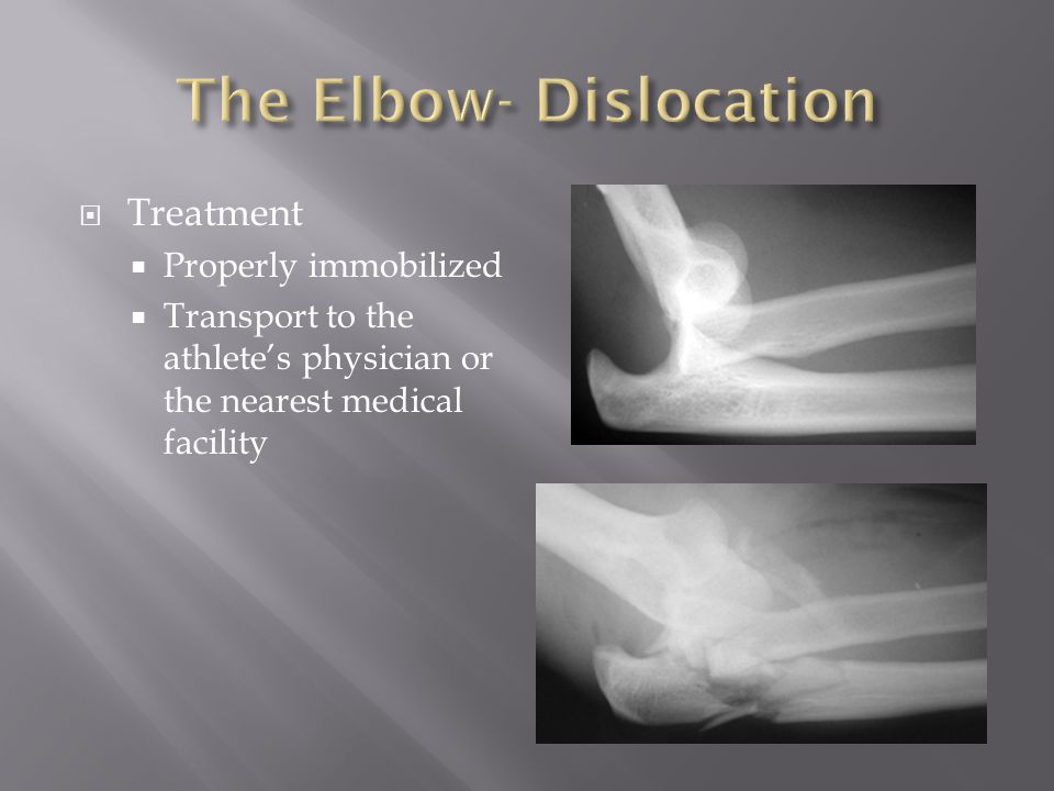 The Elbow- Dislocation
