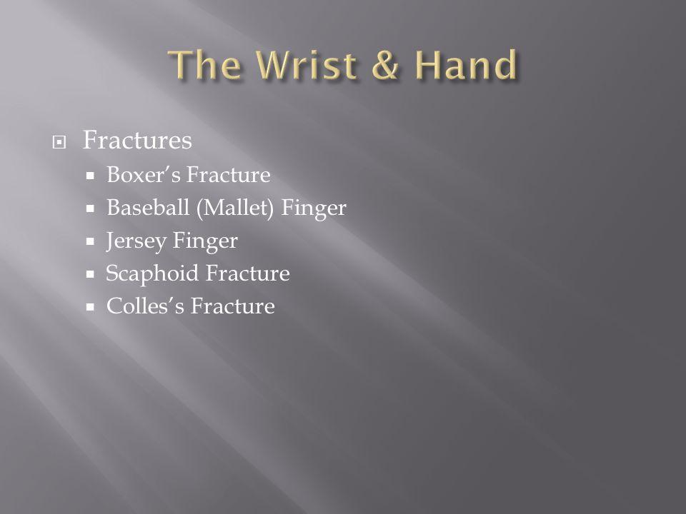 The Wrist & Hand Fractures Boxer's Fracture Baseball (Mallet) Finger