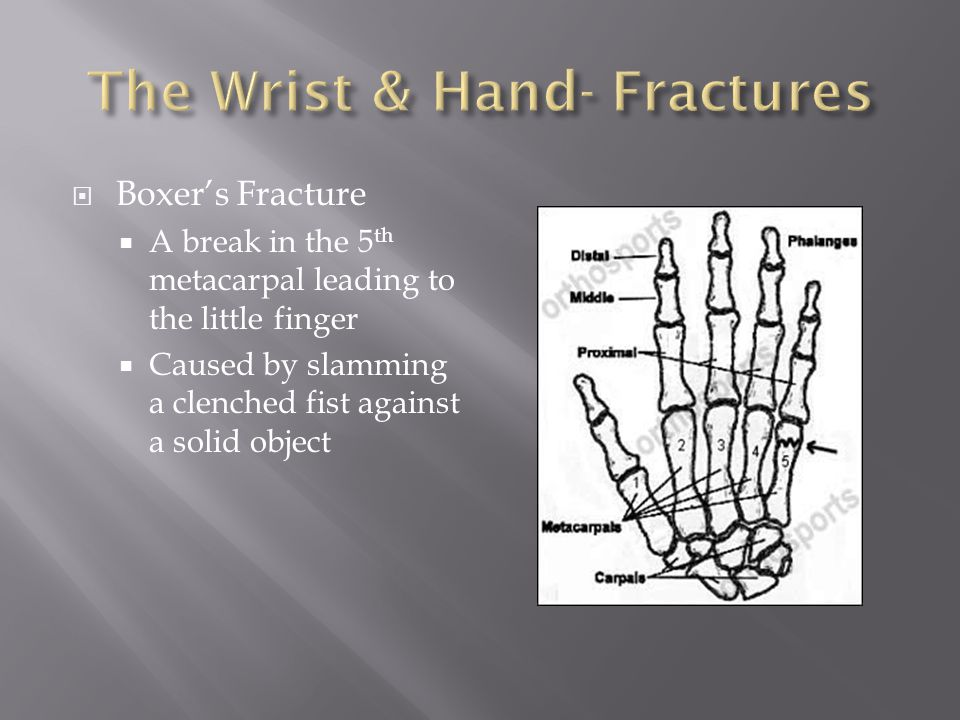 The Wrist & Hand- Fractures