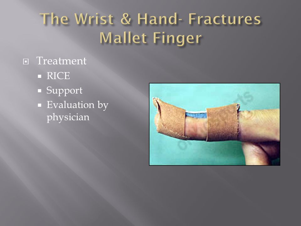 The Wrist & Hand- Fractures Mallet Finger