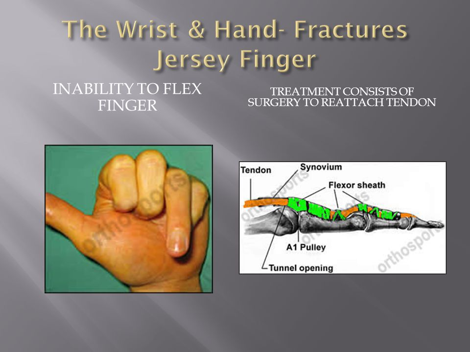 The Wrist & Hand- Fractures Jersey Finger
