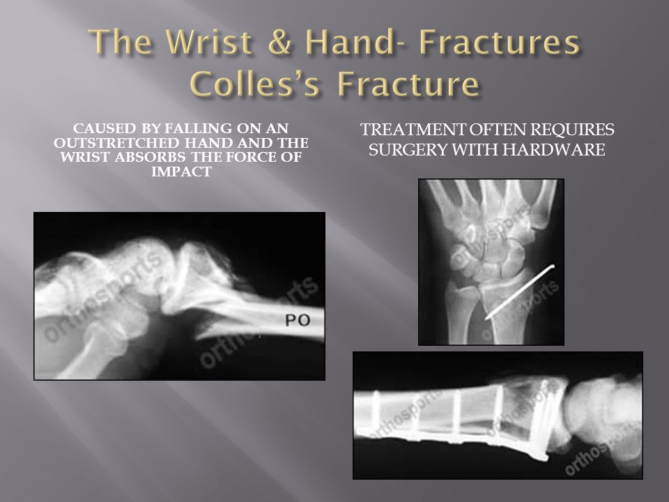 The Wrist & Hand- Fractures Colles's Fracture