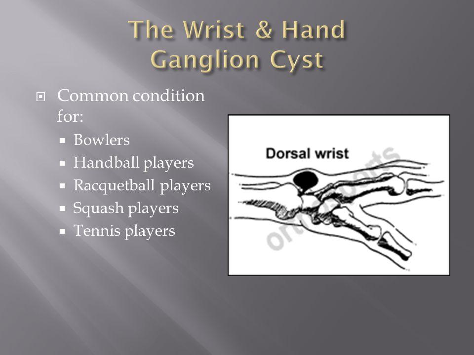 The Wrist & Hand Ganglion Cyst