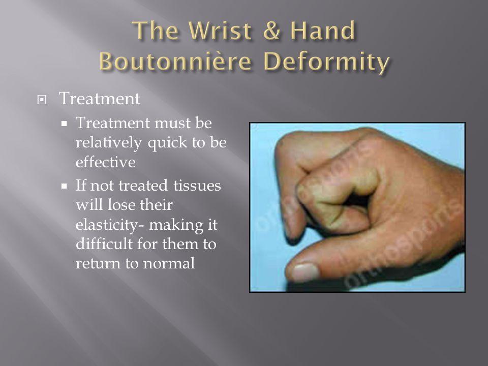 The Wrist & Hand Boutonnière Deformity