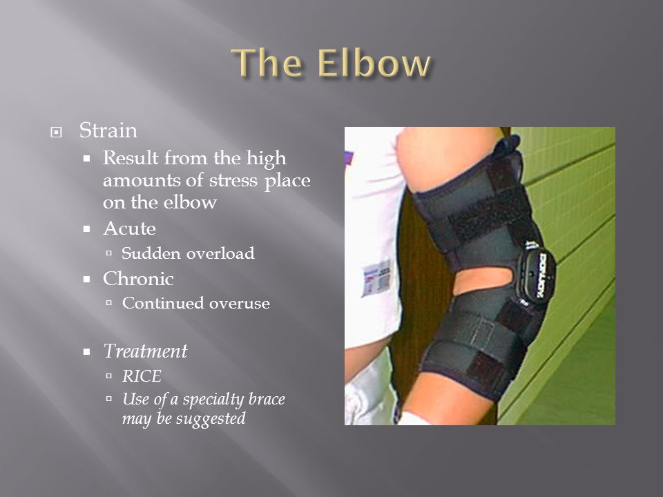 The Elbow Strain. Result from the high amounts of stress place on the elbow. Acute. Sudden overload.