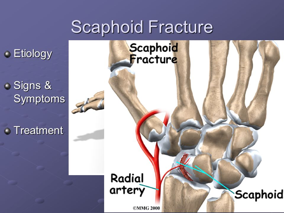 Scaphoid Fracture Etiology Signs & Symptoms Treatment